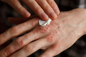 Psoriasis Cure And Its Effect On Body