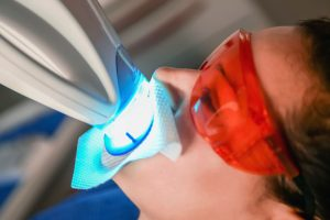 Facts vs. Myths Associated with Teeth Whitening as Explained by Dentist
