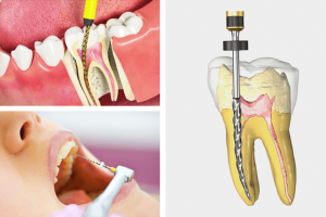 Root Canal Treatment- Best Way Of Treating Your Tooth Infection