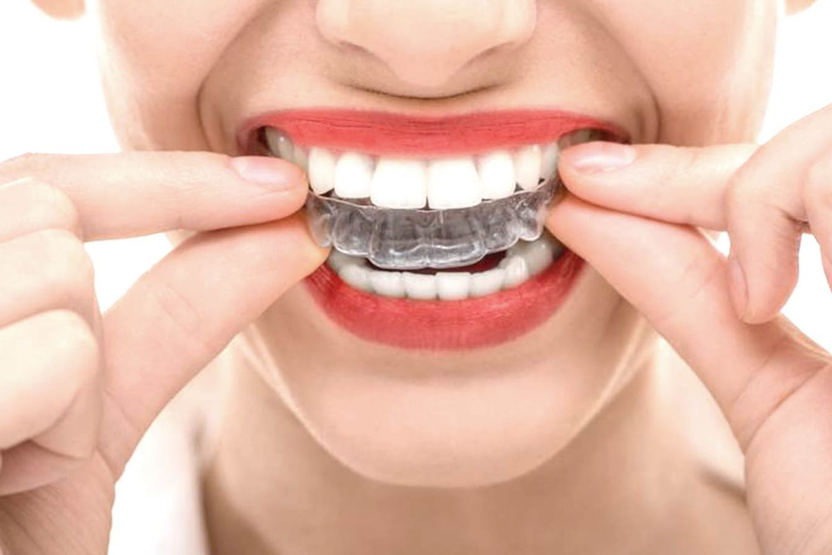 Correct Your Crooked Smile With Invisalign