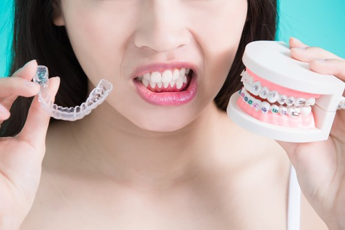 What Are The Benefits Of Braces?